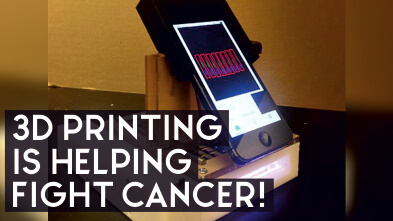 3D printing is helping fight cancer!
